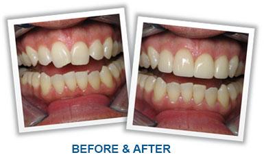 Correct Uneven Teeth