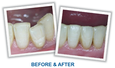 Inman Aligners Before After