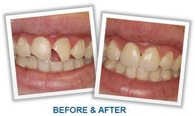 Saving Teeth
