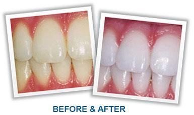 Whiter Teeth